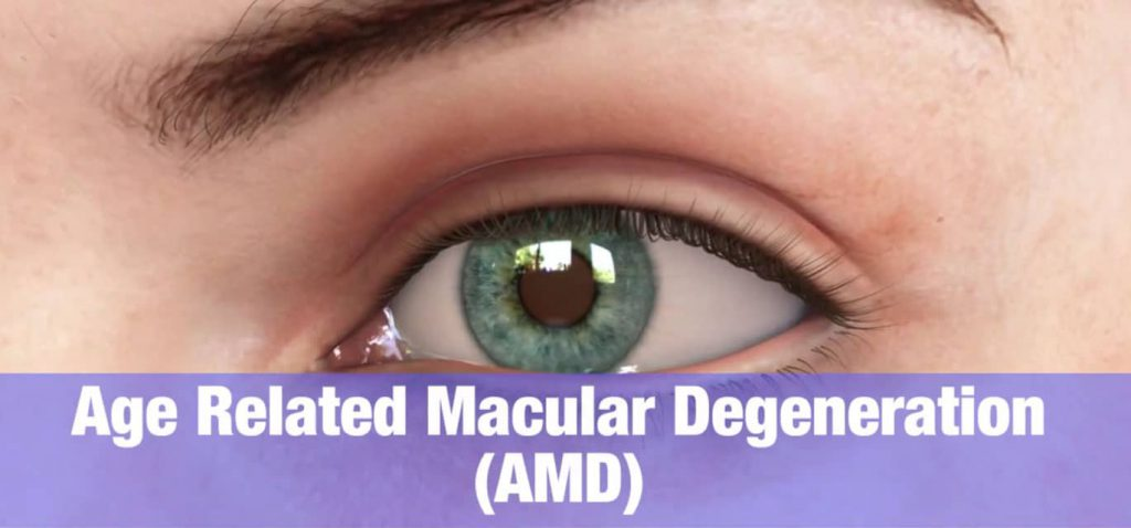Macular Degeneration Overview