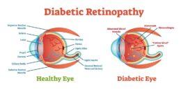 Diagram of healthy eye and diabetic eye